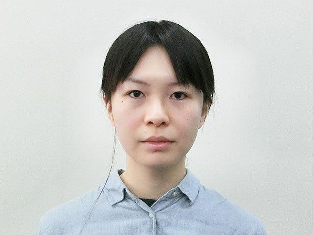 小顔・顔の歪み矯正 N.Sさん(28歳)ビフォア写真