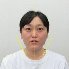 小顔・顔の歪み矯正 S.Tさん(35歳)