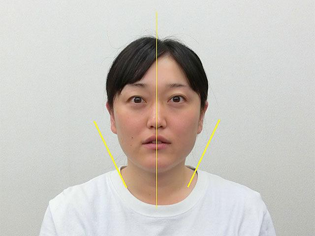 小顔・顔の歪み矯正 S.Tさん(35歳)アフター写真