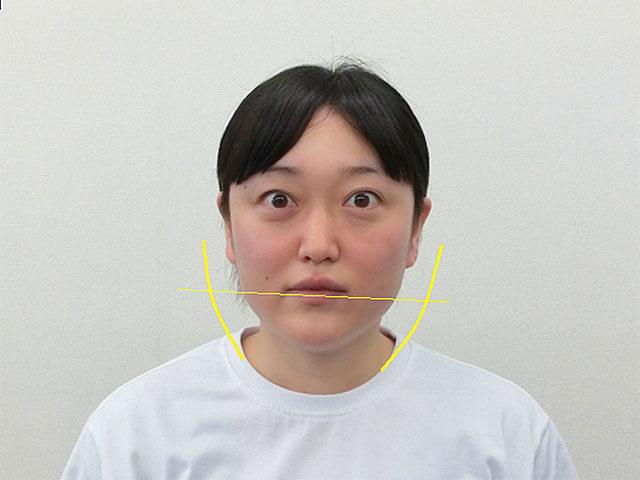 小顔・顔の歪み矯正 S.Tさん(35歳)ビフォア写真