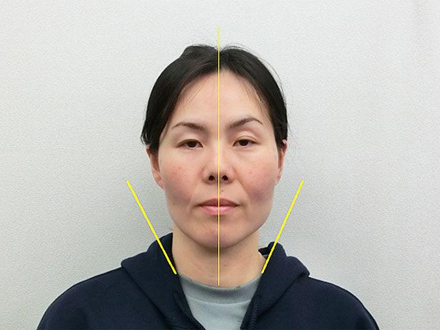 美容整体(全身根本改善)K.Kさん(44歳)アフター写真