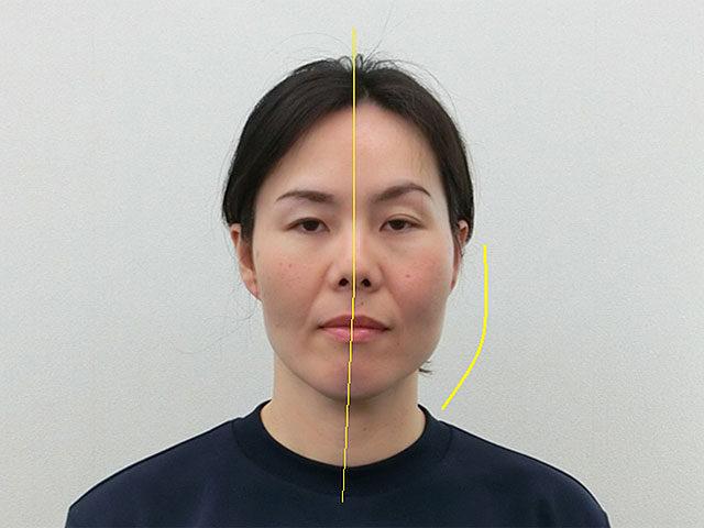 美容整体(全身根本改善)K.Kさん(44歳)ビフォア写真