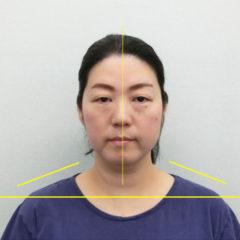 美容整体(全身根本改善)H.Nさん(48歳)