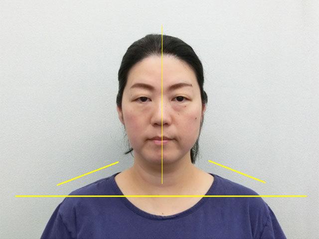 美容整体(全身根本改善)H.Nさん(48歳)アフター写真