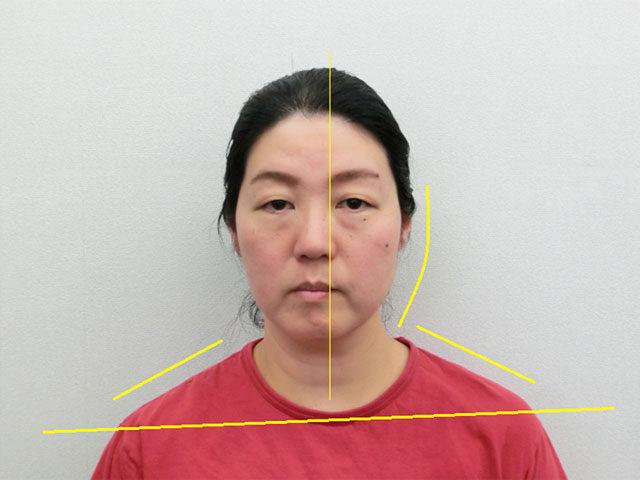 美容整体(全身根本改善)H.Nさん(48歳)ビフォア写真