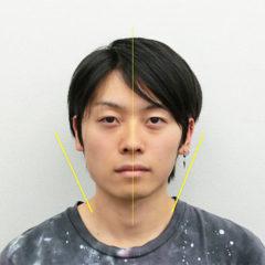 小顔・顔の歪み矯正 O.Tさん(21歳)