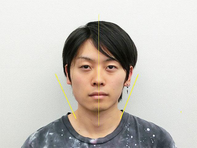 小顔・顔の歪み矯正 O.Tさん(21歳)アフター写真