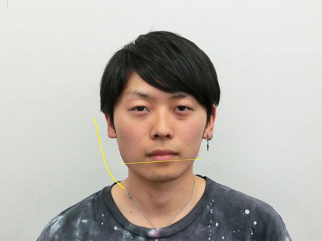 小顔・顔の歪み矯正 O.Tさん(21歳)ビフォア写真