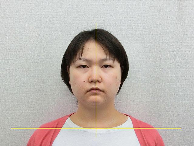 美容整体(全身根本改善)S.Aさん(33歳)アフター写真