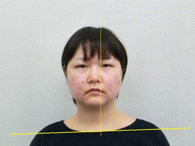 美容整体(全身根本改善)S.Aさん(33歳)ビフォア写真