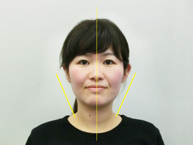 小顔・顔の歪み矯正 K.Yさん(26才)アフター写真