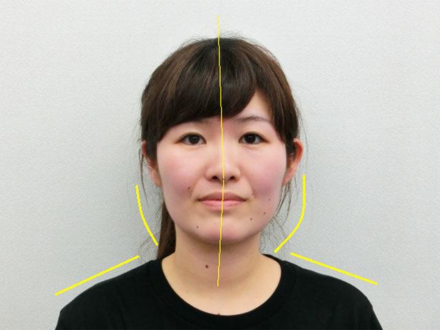 小顔・顔の歪み矯正 K.Yさん(26才)ビフォア写真