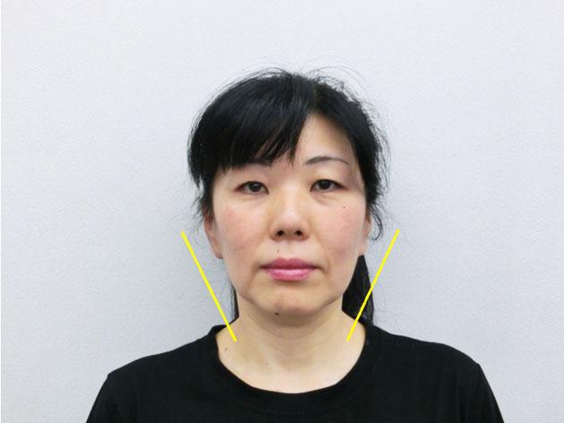 小顔・顔の歪み矯正 U.Mさん(50歳)アフター写真