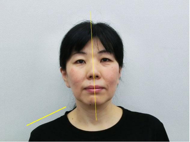 小顔・顔の歪み矯正 U.Mさん(50歳)ビフォア写真