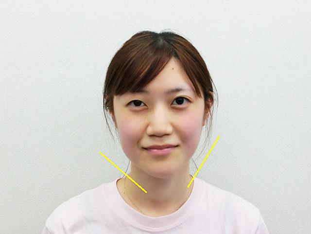 美容整体(全身根本改善)O.Mさん(24歳)ビフォア写真