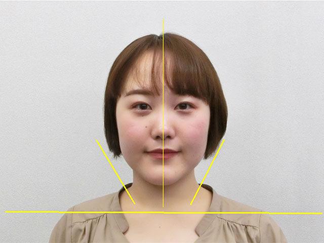 小顔・顔の歪み矯正 S.Mさん(20歳)アフター写真