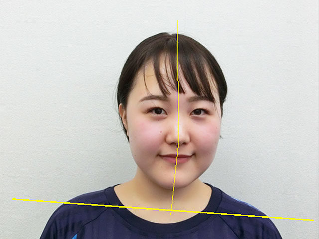 小顔・顔の歪み矯正 S.Mさん(20歳)ビフォア写真