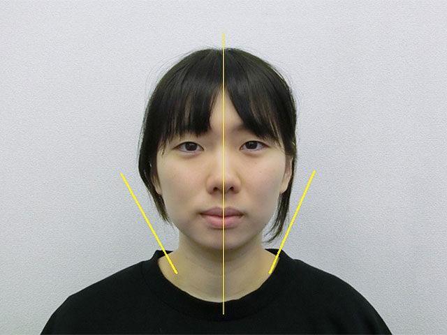 美容整体(全身根本改善)T.Mさん(23歳)アフター写真