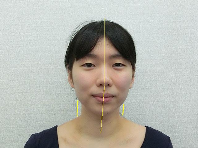 美容整体(全身根本改善)T.Mさん(23歳)ビフォア写真