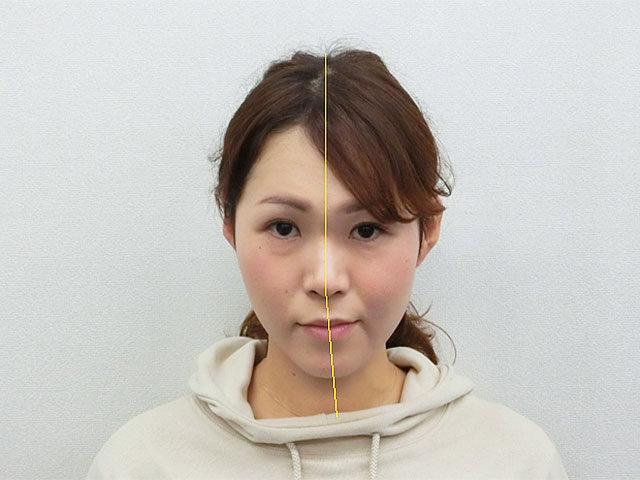 美容整体(全身根本改善)A.Mさん(35歳)ビフォア写真