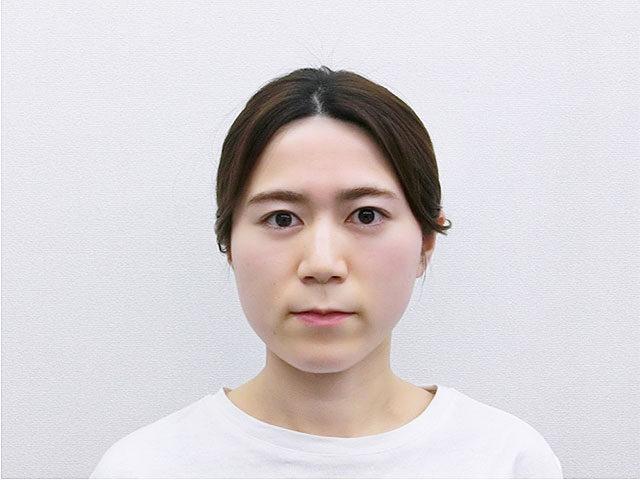 美容整体(全身根本改善)W.Mさん(27歳)アフター写真