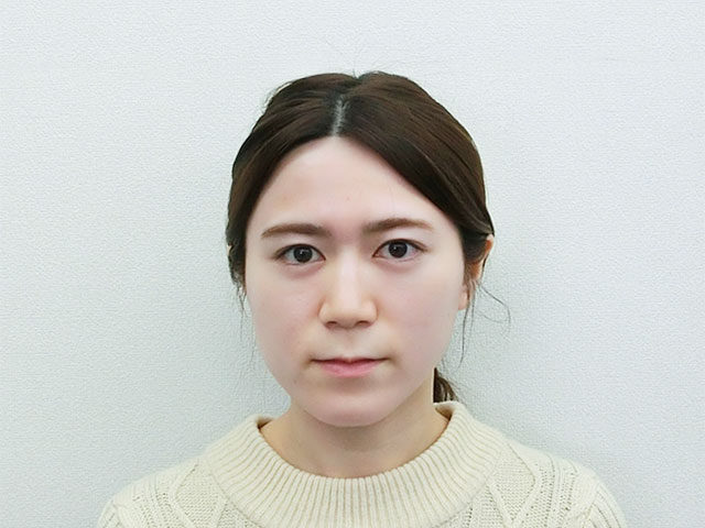 美容整体(全身根本改善)W.Mさん(27歳)ビフォア写真