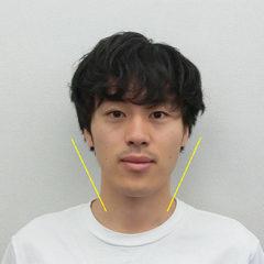 美容整体(全身根本改善)T.Kさん(22歳)
