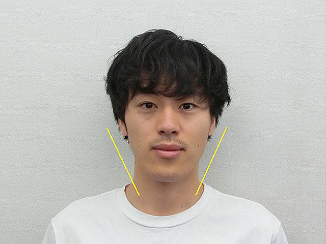 美容整体(全身根本改善)T.Kさん(22歳)アフター写真