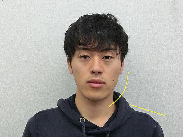 美容整体(全身根本改善)T.Kさん(22歳)ビフォア写真