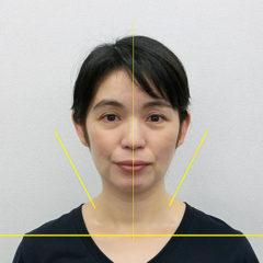 美容整体(全身根本改善)A.Yさん(46歳)