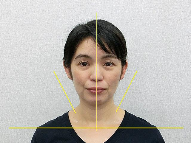 美容整体(全身根本改善)A.Yさん(46歳)アフター写真