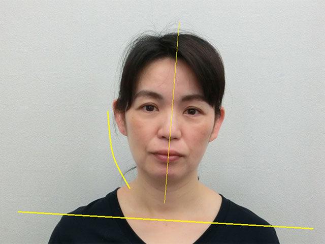 美容整体(全身根本改善)A.Yさん(46歳)ビフォア写真