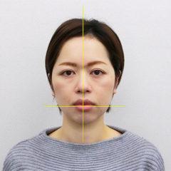 小顔・顔の歪み矯正I.Yさん(35歳)