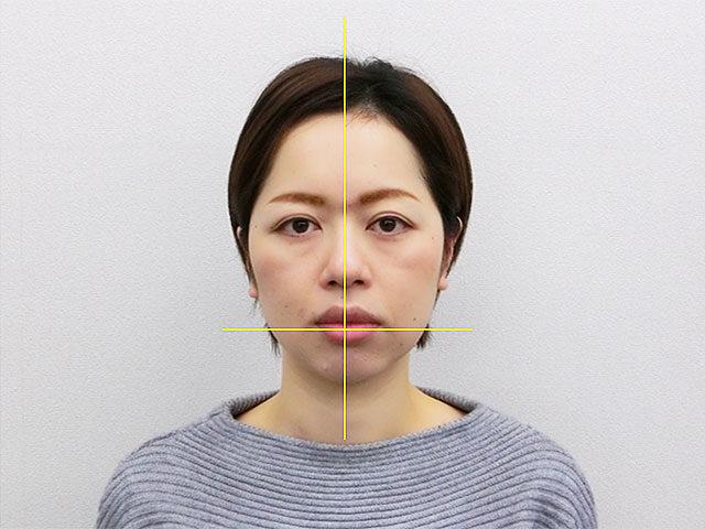 小顔・顔の歪み矯正I.Yさん(35歳)アフター写真