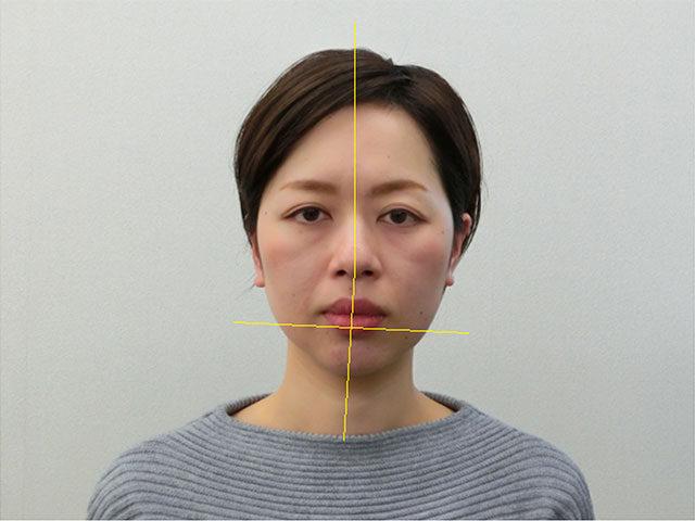 小顔・顔の歪み矯正I.Yさん(35歳)ビフォア写真