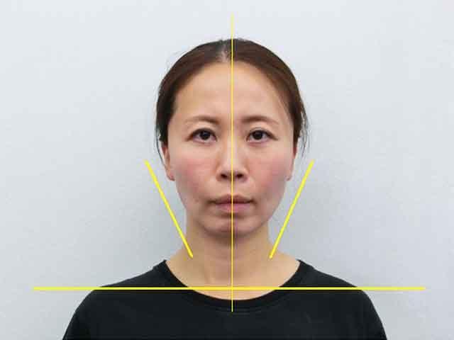 美容整体(全身根本改善)N.Mさん(42歳)アフター写真