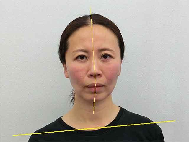 美容整体(全身根本改善)N.Mさん(42歳)ビフォア写真