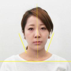 小顔・顔の歪み矯正 O.Tさん(27歳)