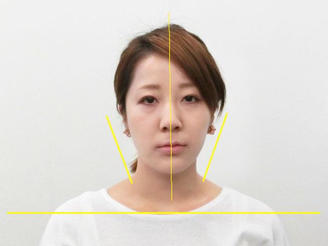 小顔・顔の歪み矯正 O.Tさん(27歳)アフター写真