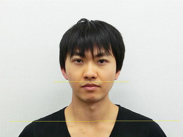 美容整体(全身根本改善)N.Aさん(23歳)アフター写真