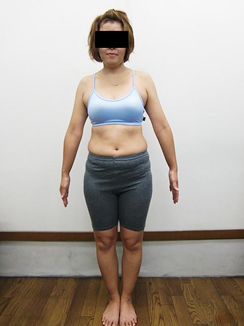 C.Nさん42歳 3か月体重-5㎏! ウエスト-7cm!ビフォア写真