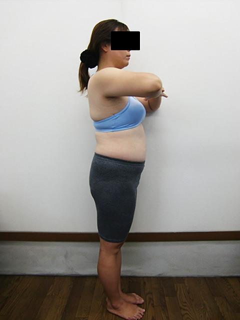 小顔・顔の歪み矯正・骨盤矯正・プロポーション矯正 39歳ビフォア写真