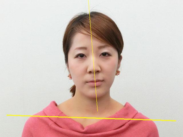 小顔・顔の歪み矯正 O.Tさん(27歳)ビフォア写真