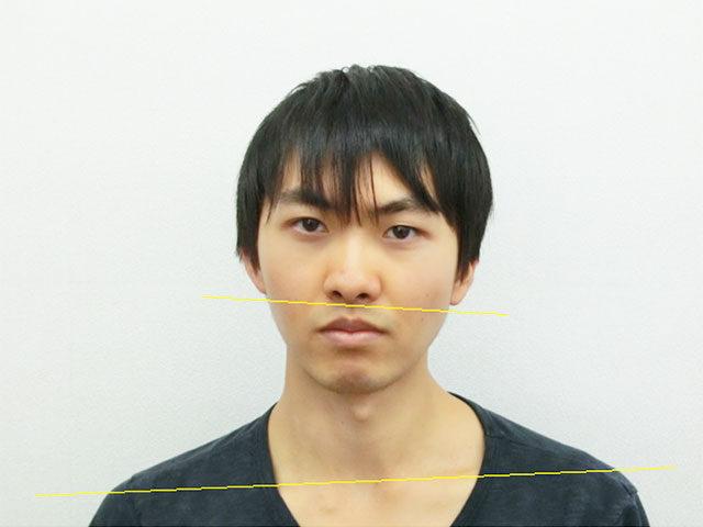 美容整体(全身根本改善)N.Aさん(23歳)ビフォア写真